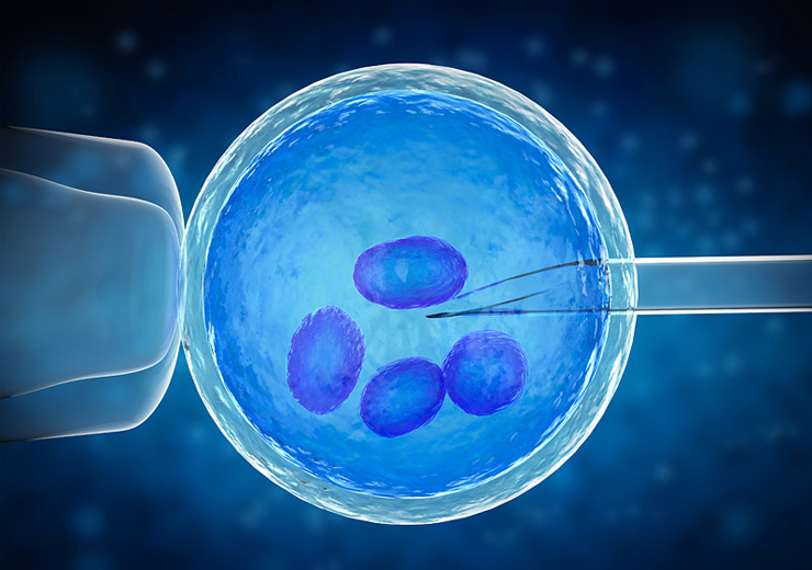 Preimplantation Genetic Screening (PGS)